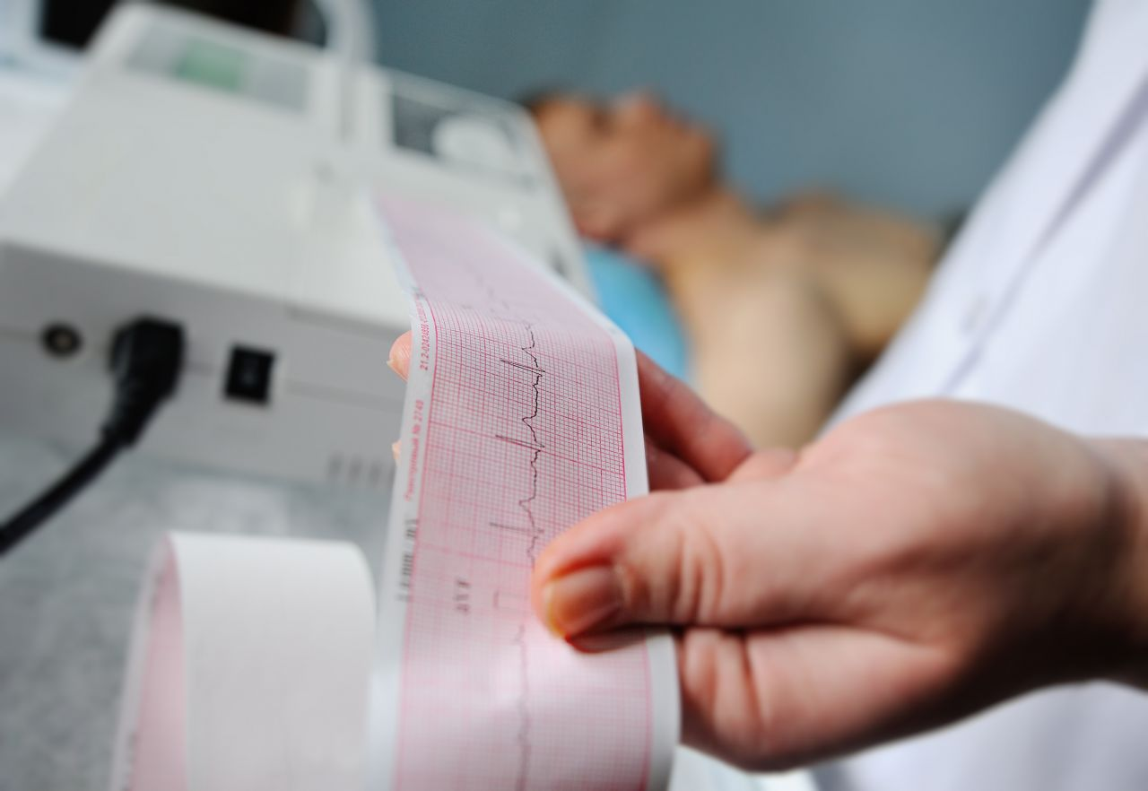 EKG Reading