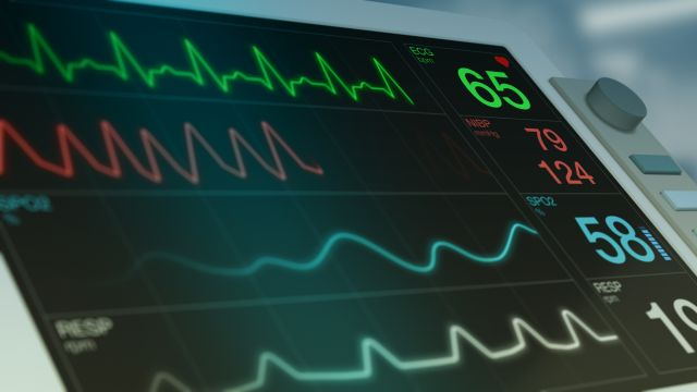 closeup view of an ecg ekg monitor on a operating room