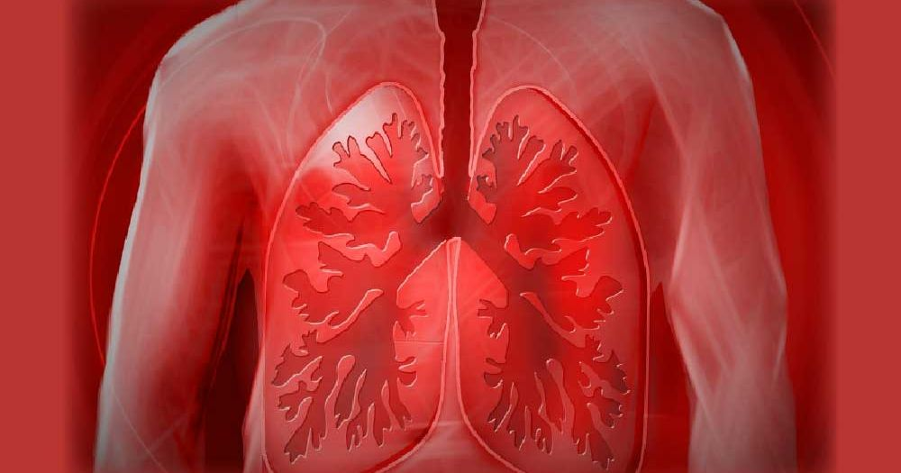 Lung-image-for-cost-of-spirometer-coverfix