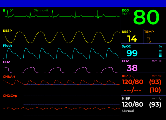 patient-monitor-screen